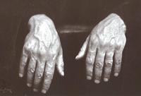 hande2